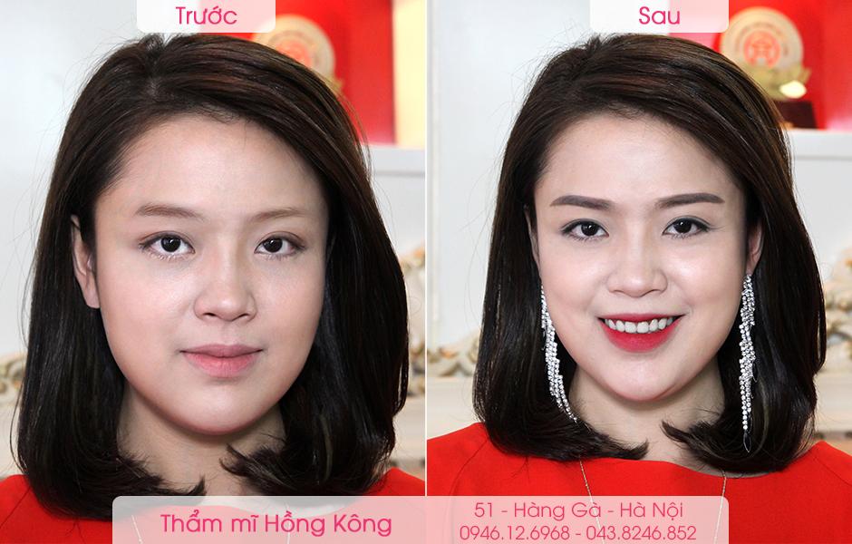 khach-hang-truoc-va-sau-khi-phun-moi-tai-tham-my-hong-kong
