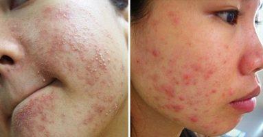 7 sai lầm khi chữa trị mụn gây hủy hoại làn da nhanh chóng