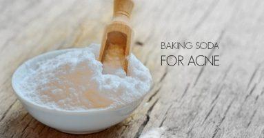 Sự thật bạn cần biết về cách trị mụn cám bằng baking soda