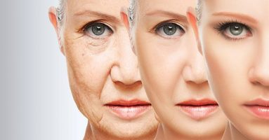 Chị em chia sẻ: Căng da cổ có hiệu quả không?