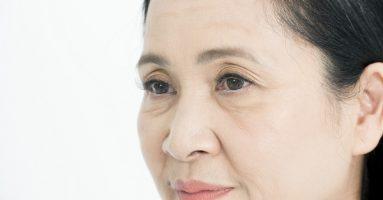 Hỏi – đáp chuyên gia: Căng da mặt có tốt không?