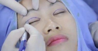 Bấm mí mắt ở đâu đẹp và an toàn nhất?